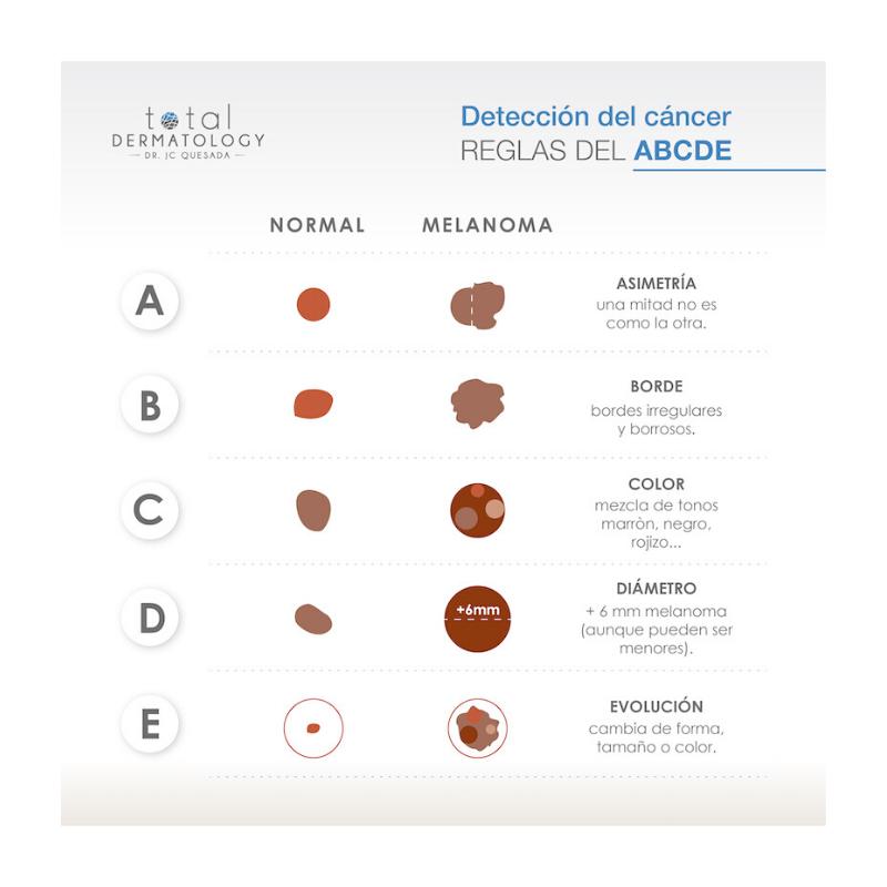 ¿Cómo detectar un melanoma?