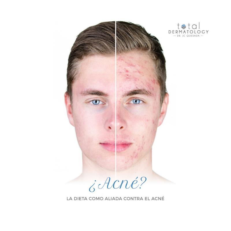 La dieta como aliada contra el acné
