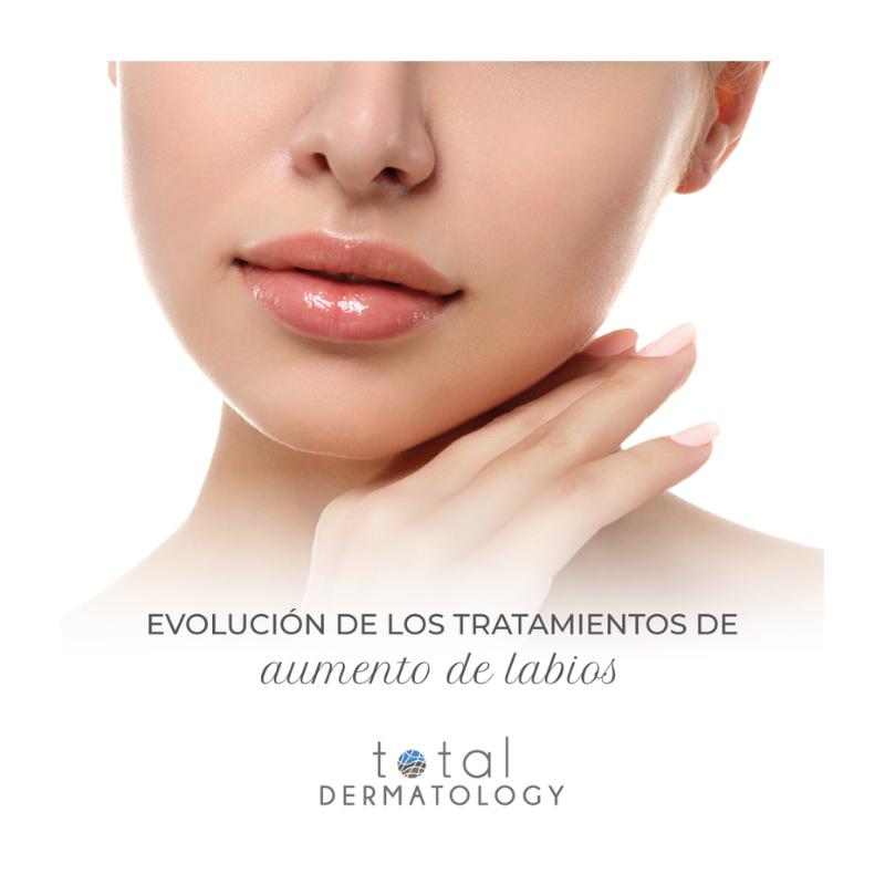 Evolución de los tratamientos de aumento de labios